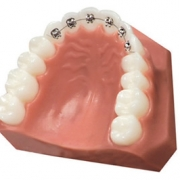 Lingual Braces Are Your Virtually Invisible Option For Straight Teeth Thumbnail