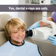 Are Dental X-Rays Safe? Thumbnail