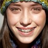 Are Your Braces Bothering You? Try These Tips… Thumbnail